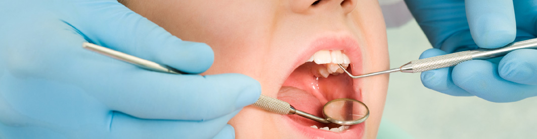orthodontics-in-calicut